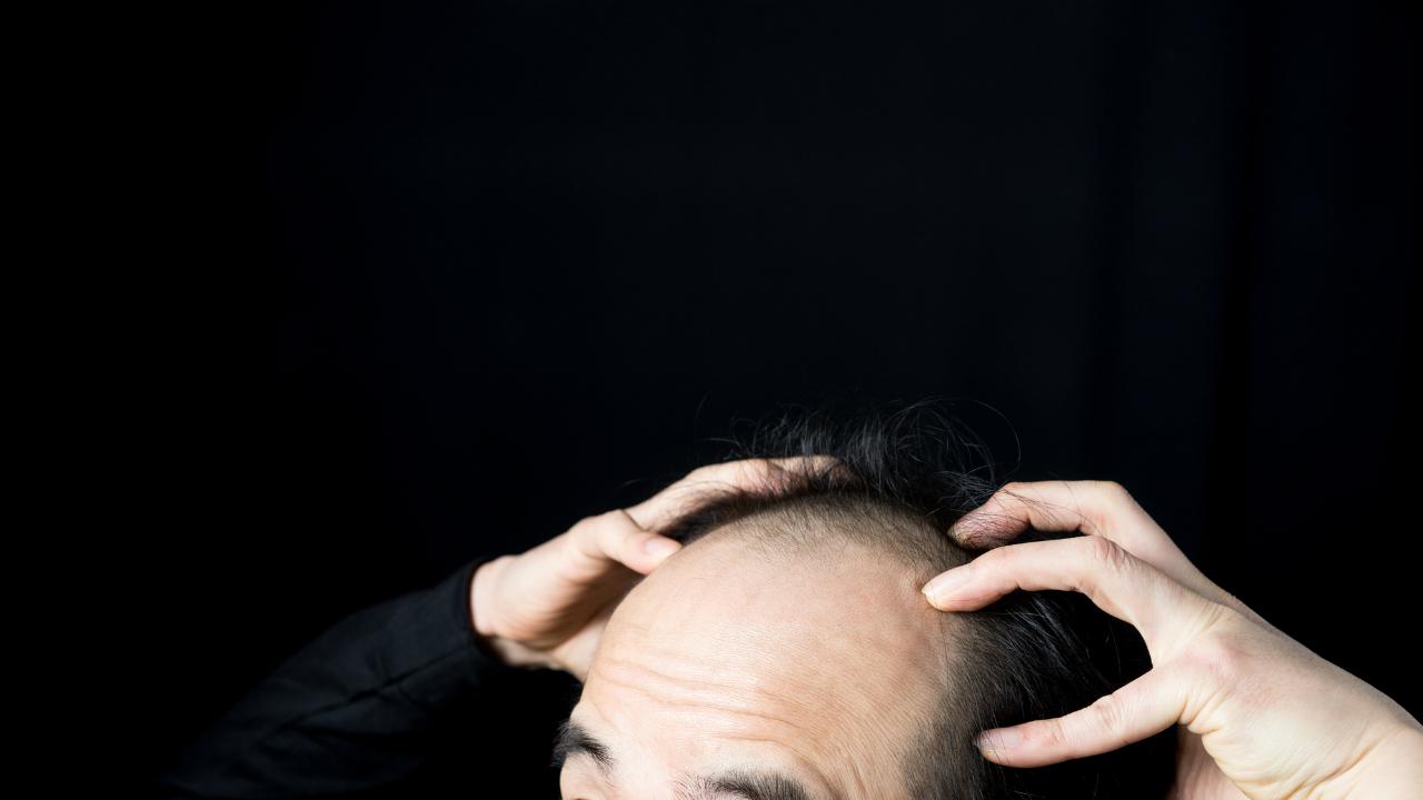 てっぺんハゲ VS 後退ハゲ 薄毛対策の効果が出やすいのは?