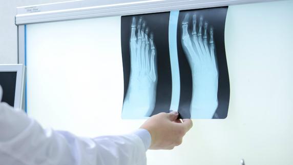 骨粗しょう症の原因!? 活性酸素が「骨」に与える影響