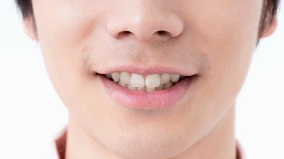 口呼吸を改善させるエクササイズ「あいうべ体操」とは?