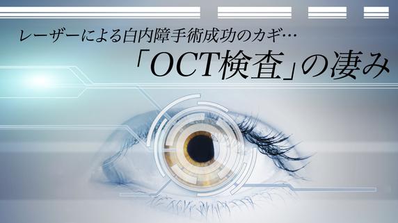 レーザーによる白内障手術成功のカギ…「OCT検査」の凄み
