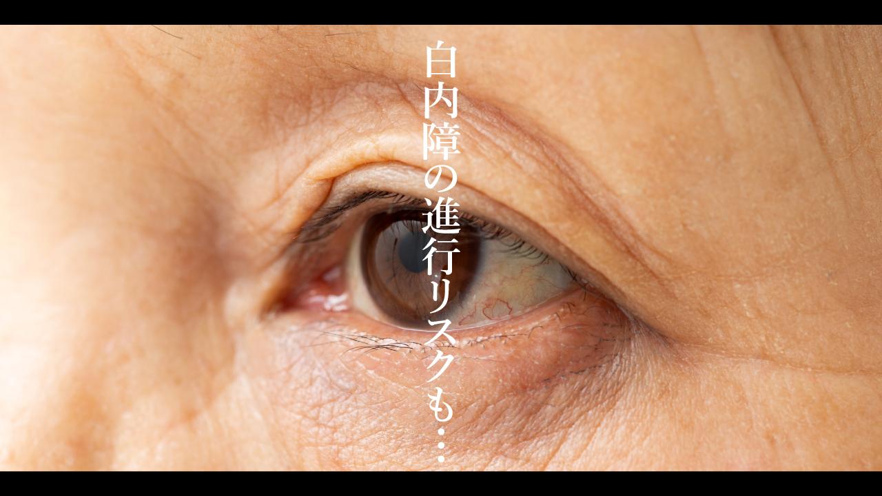 白内障の進行リスクも…視界が歪む疾患「黄斑円孔」の治療法