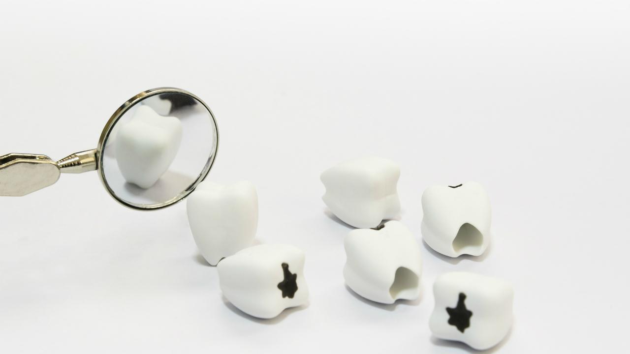 「抜けた歯」を放置した場合の健康上・美容上のリスクとは?