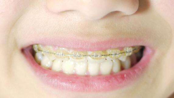 「矯正歯科治療は痛い」というイメージは正しいか?