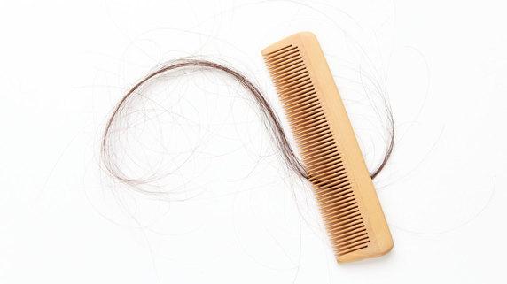 女性の薄毛・・・どのような種類や症状があるのか?②