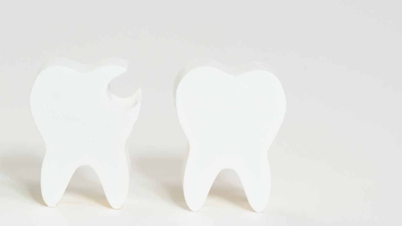 小さな虫歯に秘められた「将来の健康増進」のヒントとは?