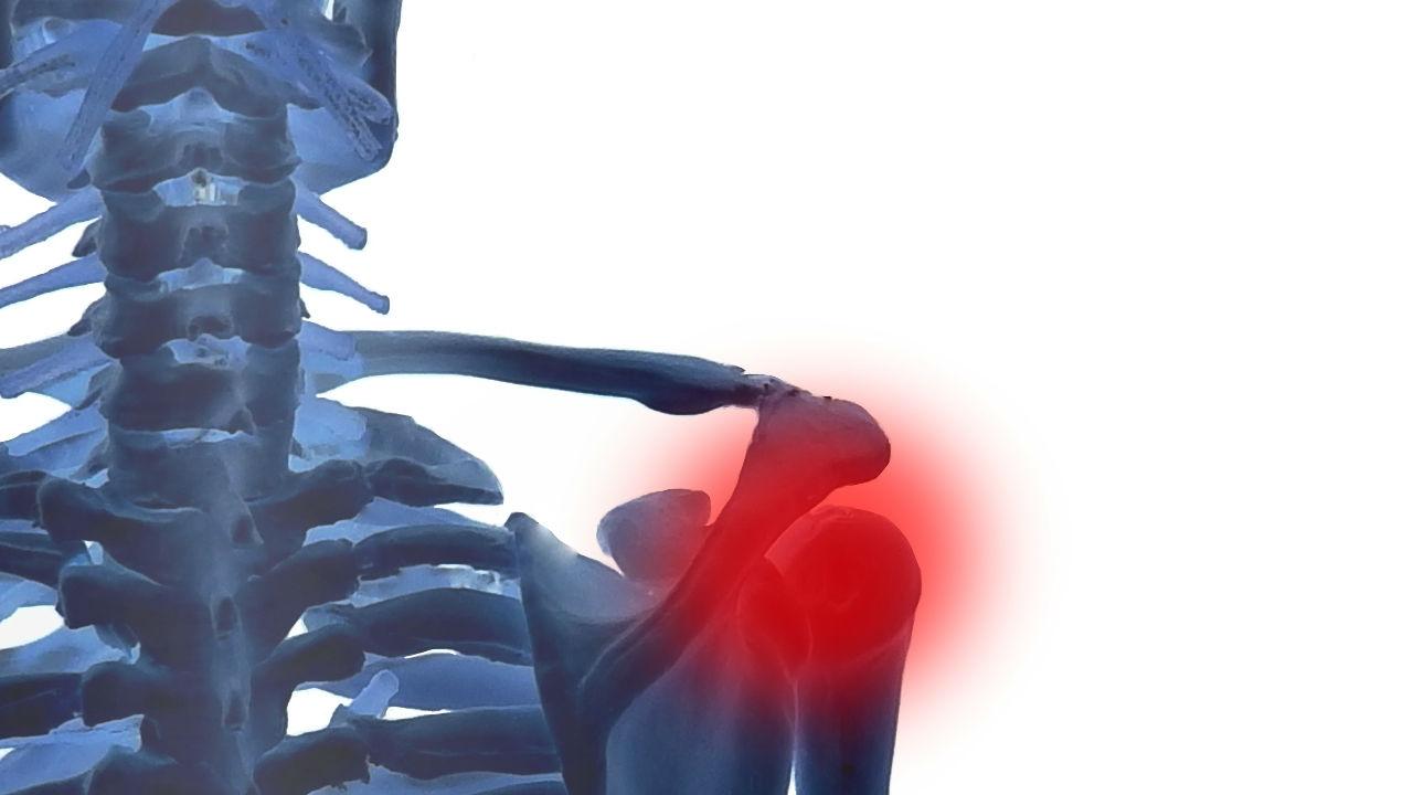 肩の痛み…「正しい診断・治療」ができる医師の見極め方