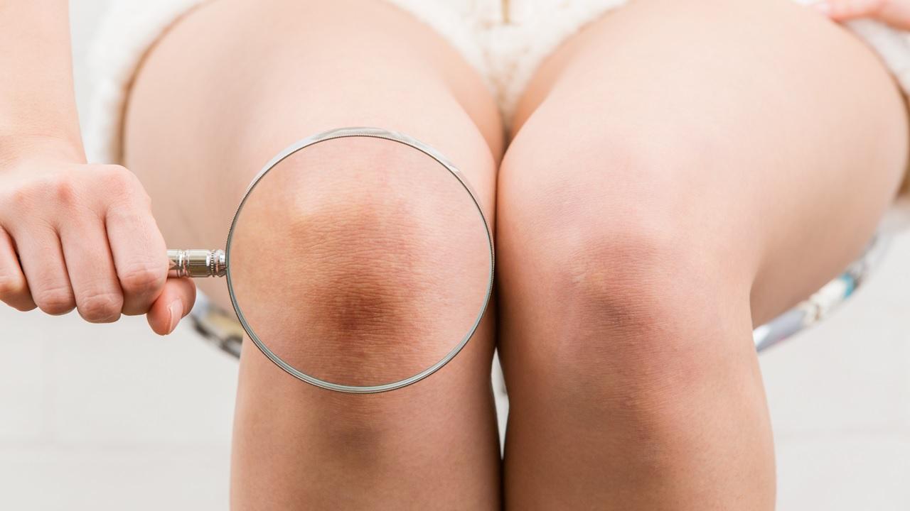 ひざの音がミシミシ鳴るのは危険信号!変形性膝関節症を疑え