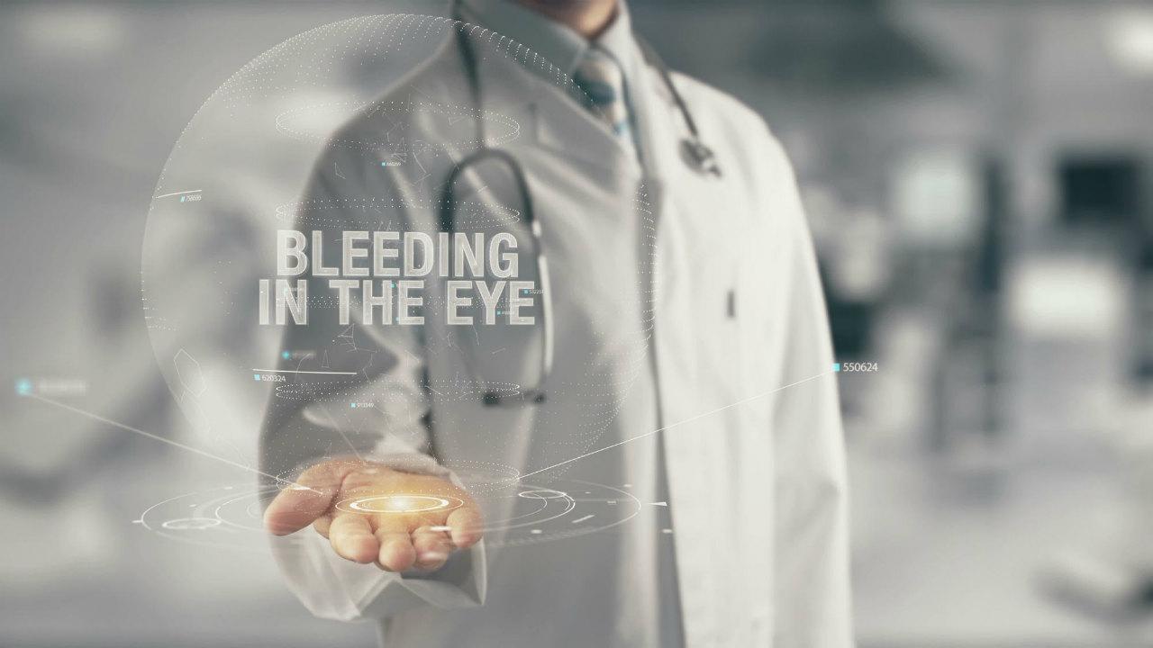 目がチカチカする…「疑うべき病気と対処法」を眼科院長が解説