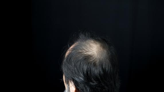 「2cmの壁」が明暗を分ける?AGA(男性型脱毛症)自己診断