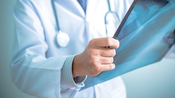 進歩を続ける「がんの放射線治療」の現況