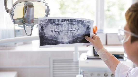 歯科医院が回収した「金歯」 雑収入として計上しているか?