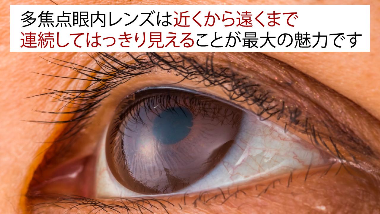 「多焦点眼内レンズの不適合」は、どんなときに起こるのか
