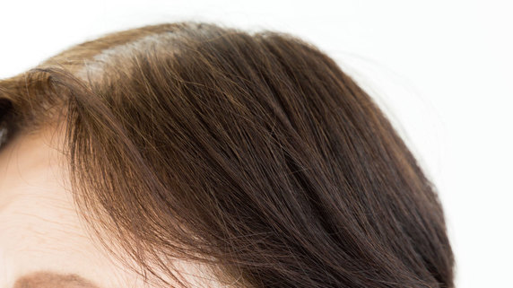 人はなぜ薄毛になるのか? 「発毛のメカニズム」を知る