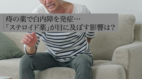 痔の薬で白内障を発症…「ステロイド薬」が目に及ぼす影響は?
